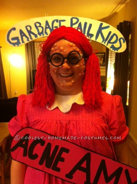 Totally Gross Homemade Costume: Acne Amy POPS up on Halloween
