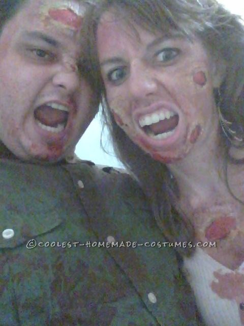 A Disgustingly Cute Zombie Couple Costume - 2