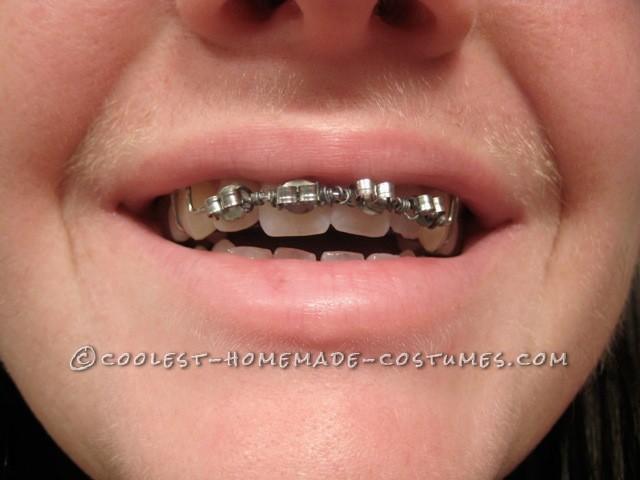 Homemade braces