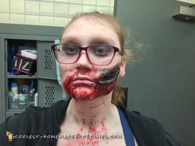 Face wound